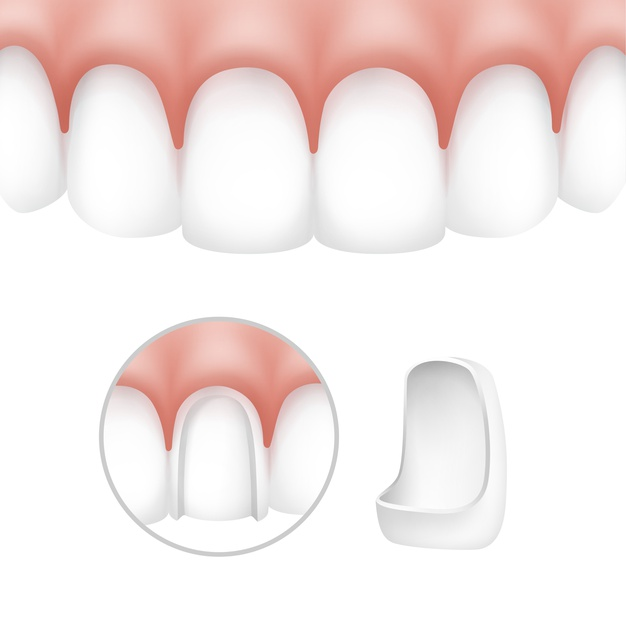 How do veneers work in a smile makeover?